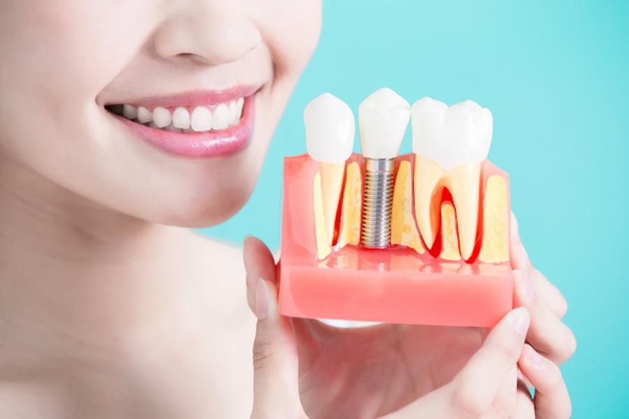 имплантация зубов от stomatologiya-konova.com